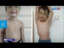 Веган-отец довел малолетнего сына до желтухи и дистрофии
