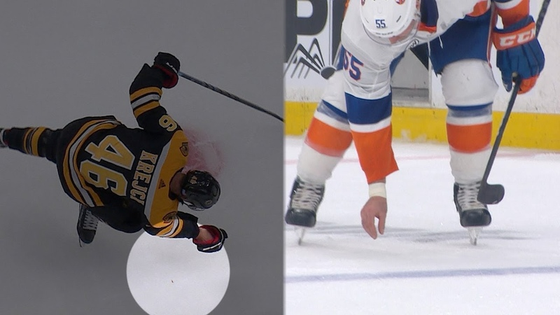 Johnny Boychuk returns David Krejcis lost tooth