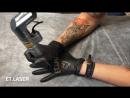 Защита контента по лазерному удалению татуировок