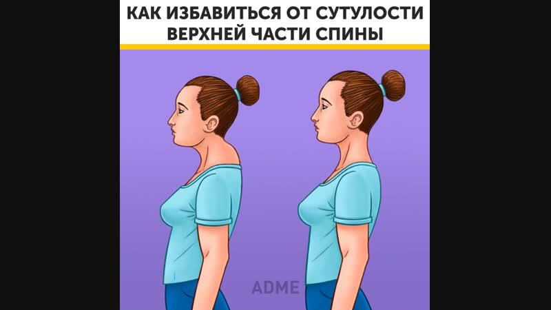 Как избавиться от холки Вдовий горбик на шее