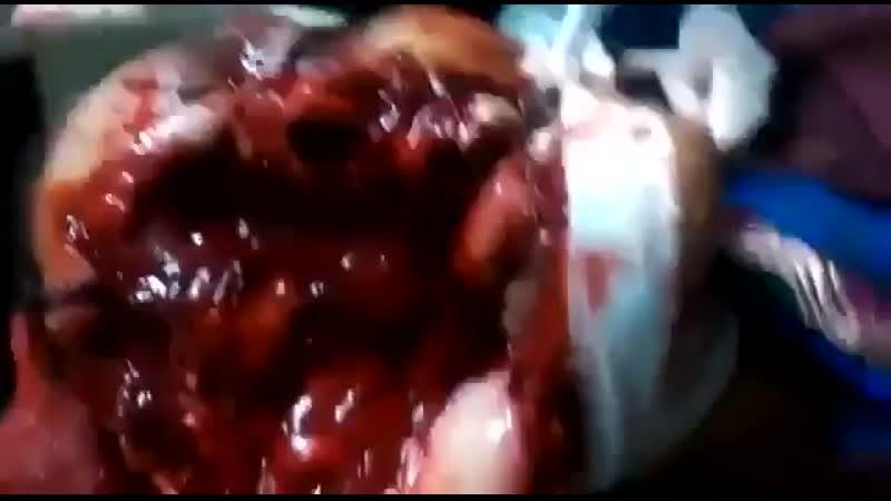 Бразильянка умерла после того, как в ее лицо запустили фейерверк.