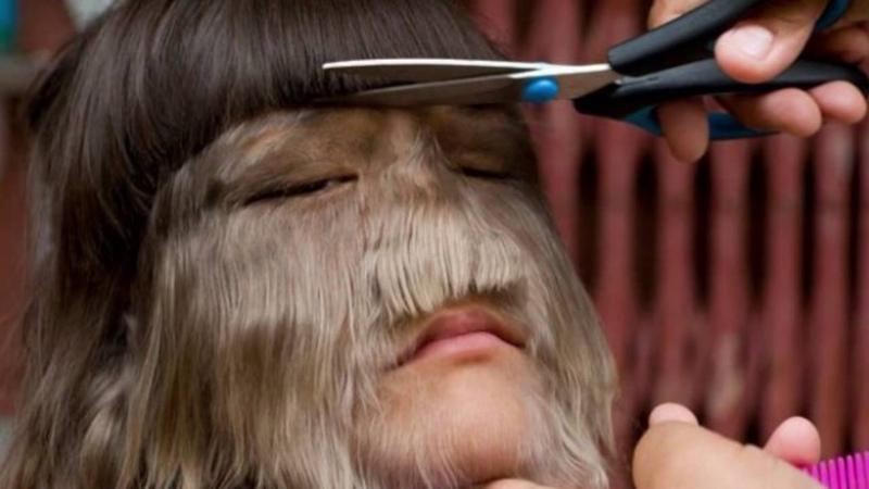 Девочка оборотень Самая волосатая девочка в мире