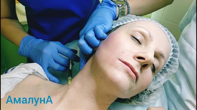 Омолаживающая процедура - плазмотерапия RegenLab (Швейцария)
