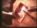 Подготовка гнойных ран к операции © Preparation of purulent wounds for surgery