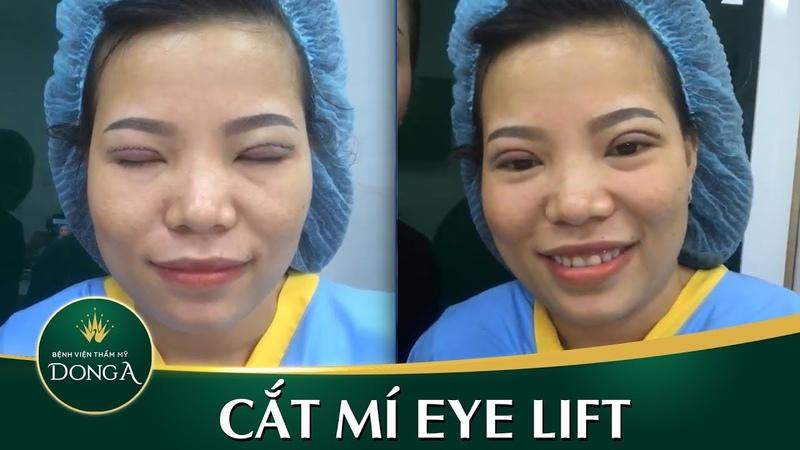 Cắt mí mắt Eye Lift - Kết quả ngay khi vừa làm xong - YouTube