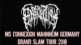 Epicardiectomy MS Connexion Mannheim Germany Grand SLAM Tour 2018