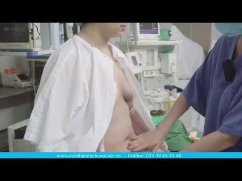 Lấy lại vòng eo 56 nhanh chóng với phẫu thuật tạo hình thành bụng