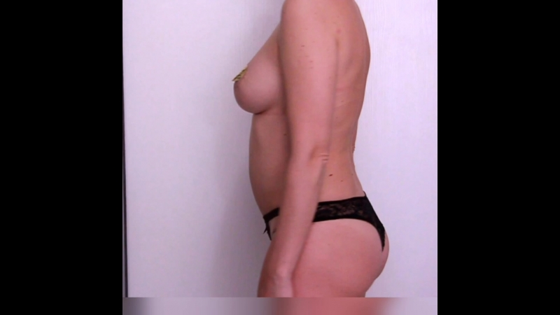 Подтяжка груди с имплантами, абдоминопластика, спустя 6 месяцев