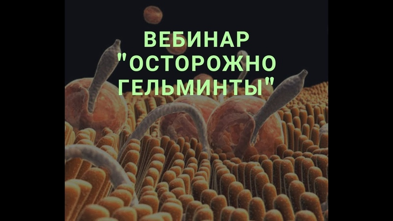 Осторожно, гельминты Как диагностировать паразитов в нашем теле О А Бутакова