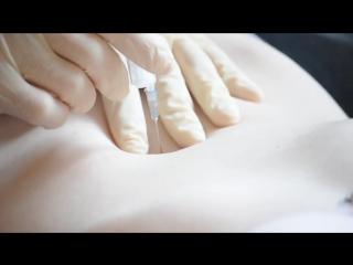 Needle in Anne's navel - HD