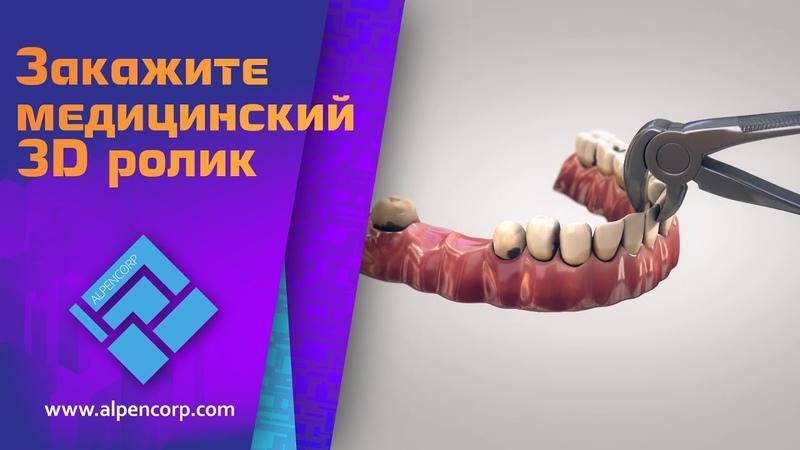 Создано в ALPENCORP. Рекламный ролик для стоматологической сети клиник.