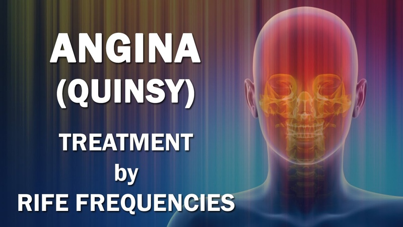 Angina (Quinsy) - RIFE Frequencies Treatment - Energy Quantum Medicine with Bioresonance