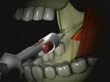 Mandibular Anesthesia - Inferior Alveolar Nerve Block