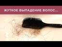 Жесть Выпадение волос На что обратить внимание чтобы избежать и предотвратить