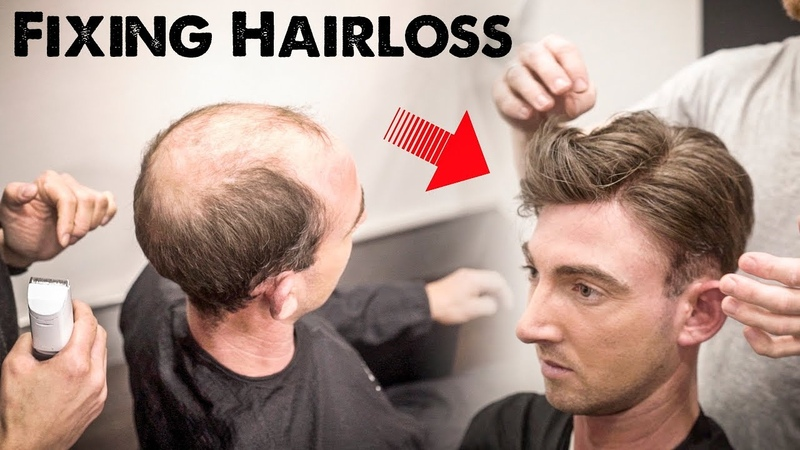 Mens Hairloss Treatment 2.0 | Amazing Hairstyle Transformation - Does it Work? | BluMaan 2018
