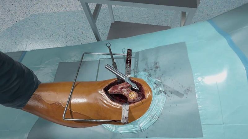 Fundamental Surgery - Total Hip Arthroplasty (Posterior)