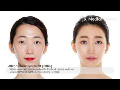 [JK RealStory] JK Model Real Interview - EyeFat graft