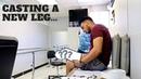 MEASURING CASTING FOR PROSTHETIC LEG