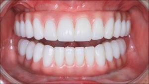 Варианты полно дугового несъемного протеза нижней челюсти с опорой на имплантат