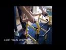 Лечение ДЦП и паралитической косолапости