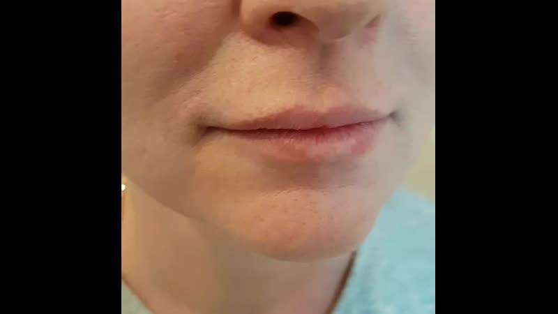 Гармонизация губ препаратом на основе гиалуроновой кислоты