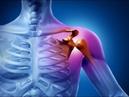 Естественное Лечение Замороженного Плеча Как можно помочь себе простейшими средствами