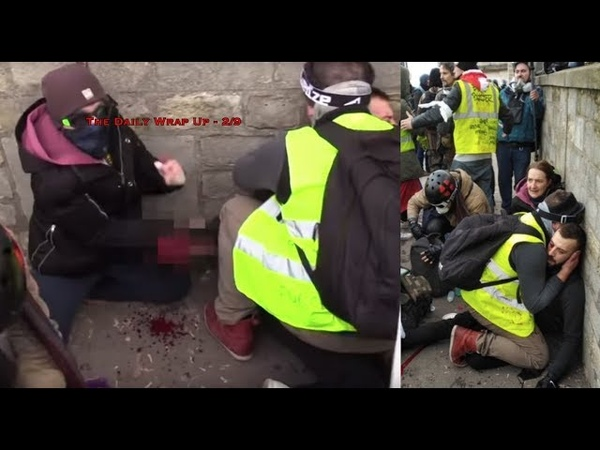 Police Blow Off Yellow Vest Photographers Hand Saudis Charged With Rape In US Whisked Back Home