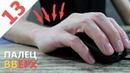 Болезнь компьютерщиков и геймеров - туннельно-карпальный синдром / Скрытый враг!