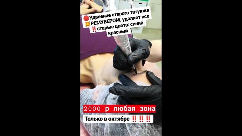 Ремувер удаление татуажа