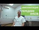Имплантация передних зубов. 😃 Восстановление передних зубов с одномоментной имплантацией. ROOTT. 12
