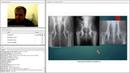 «Пациент с хромотой. Как поставить диагноз? Ортопедическое обследование» часть 2