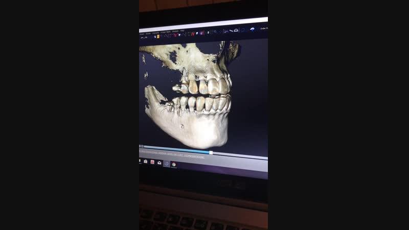 На видео-наш врач стоматолог-имплантолог Тедзелашвили Михаил оценивает костную ткань для очередной имплантации.