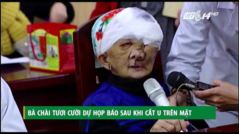 VTC14 Bà Chài tươi cười dự họp báo sau khi cắt u trên mặt