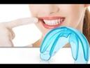 Капа для исправления прикуса G Tooth trainer