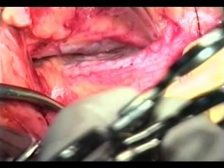 Интраперитонеальный доступ при перевязке подвздошной артерии © Ligation of the internal iliac artery.mp4