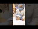 Cận cảnh điều trị nám chân sâu bằng công nghệ Melas Reno