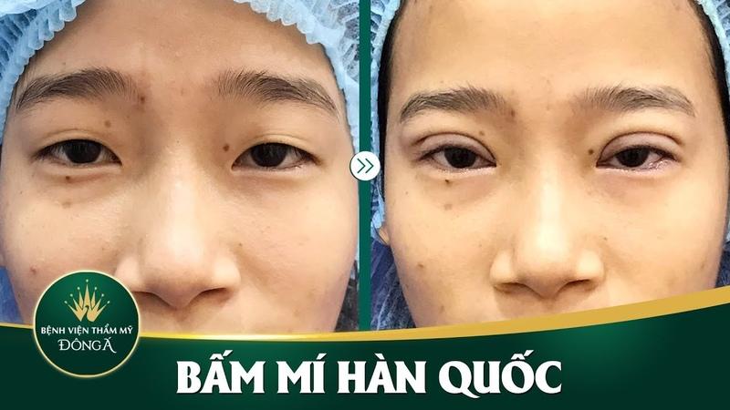 Bấm mí mắt Hàn Quốc Dr Park có đẹp không
