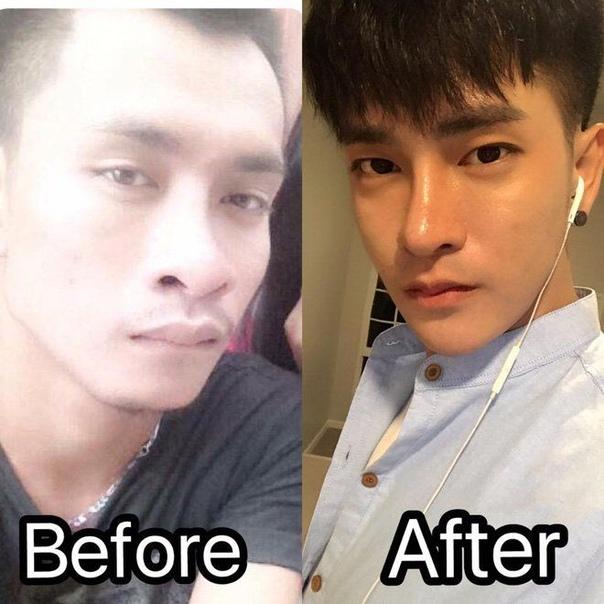 Таец сделал 30 пластических операций, чтобы выглядеть как кореец 25-летний житель Таиланда, Ратчадапонг Прасит, стал местной знаменитостью после того, как сделал 30 пластических операций в