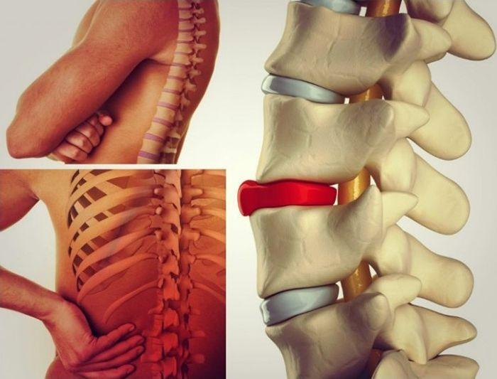 Как распознать боль в спине от грыжи межпозвоночного диска?
