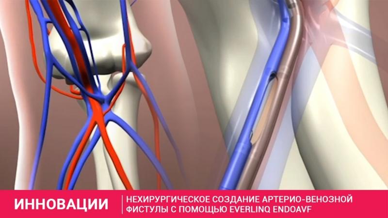 Нехирургическое создание артерио венозной фистулы