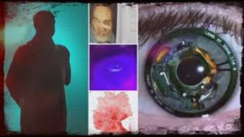 Implantate durch Geheimdienst Sonys Patent für Cyber Linsen Strahlung in Deutsc
