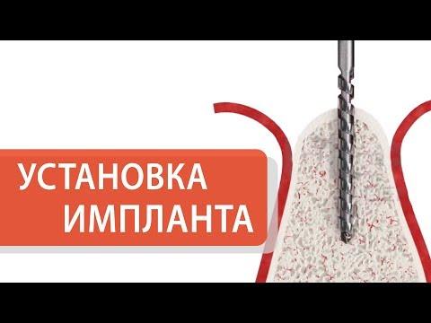 Как устанавливают зубные импланты. 👄 Подробно о том, как происходит установка зубного импланта. 12