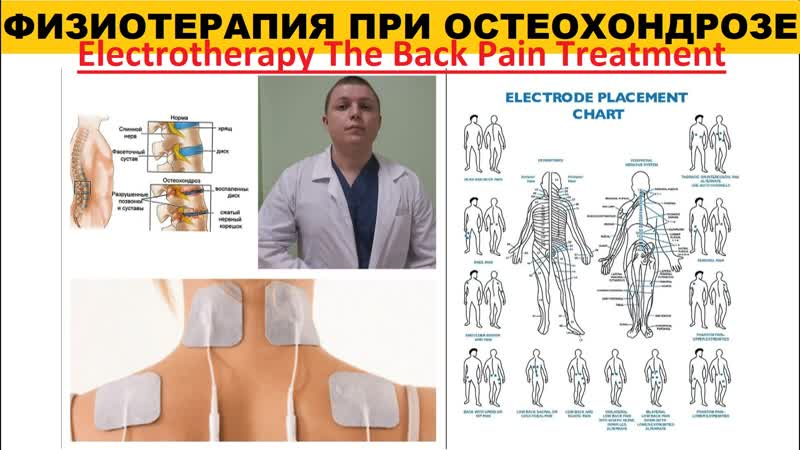 Физиотерапия при остеохондрозе ОСОБЕННОСТИ Electrotherapy The Back Pain Treatment