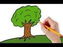 649 Болезнь Паркинсона и метод RANC Ирина первый курс лечения