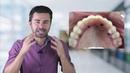 Tenha Dentes Fixos e se Arrependa! quando o sonho do implante dentário vira pesadelo.