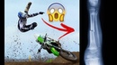 INSANE MOTOCROSS AND SUPERCROSS CRASHES | AMA MXGP |