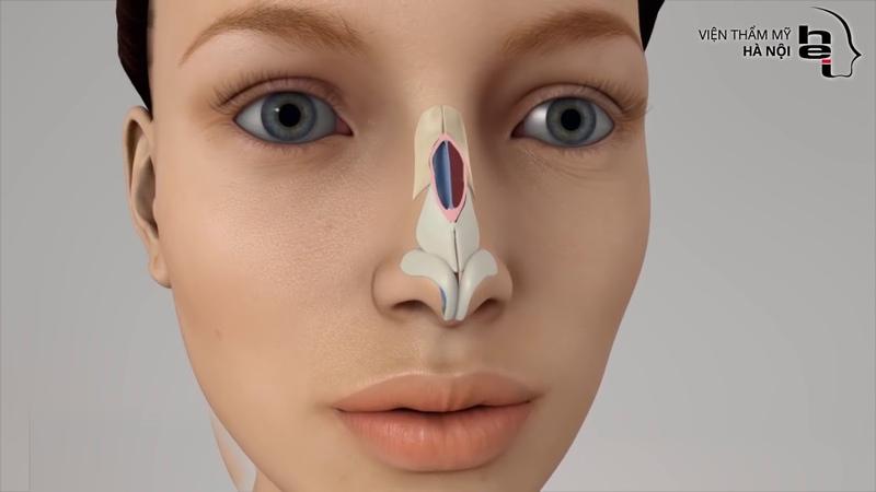 Tìm hiểu về phương pháp phẫu thuật chỉnh gồ xương mũi