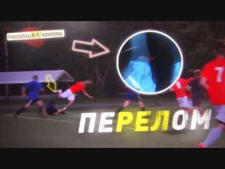 [German *El Classico*] Герман сломал ногу в первом матче. БЛОГЕРЫ VS Россия24 (серия #4 ПЕРВАЯ ИГРА)
