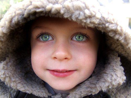Генетически синдром Уильямса