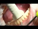 Clinpro™ - процедура профессиональной гигиены полости рта